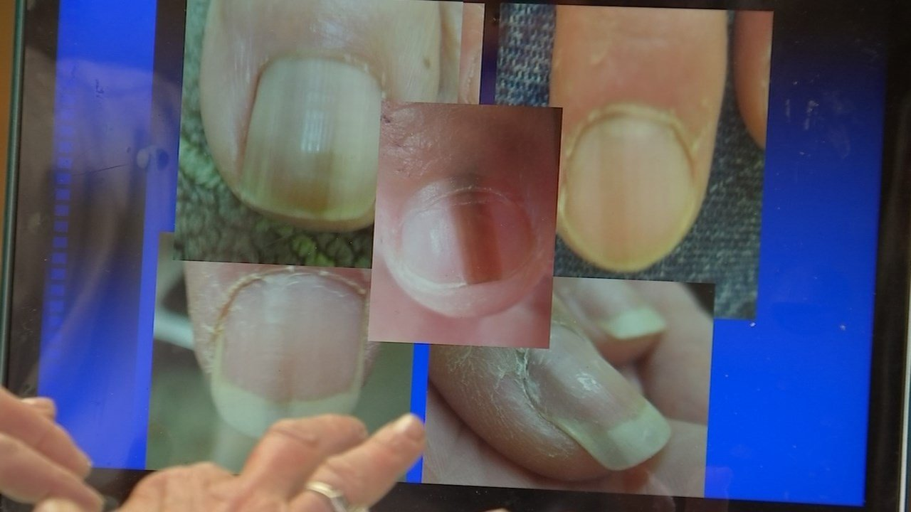 Dermatologists warn that dark line or stripe running from the back to the end of the nail can be a warning sign of nail melanoma. (KPTV)