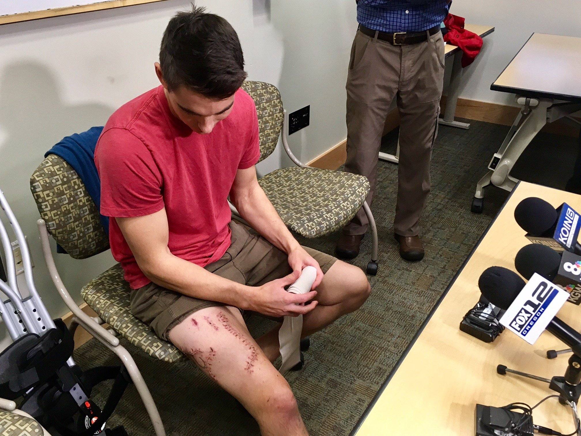 Joe Tanner, the survivor of a shark attack on the Oregon Coast, looks at his injuries.