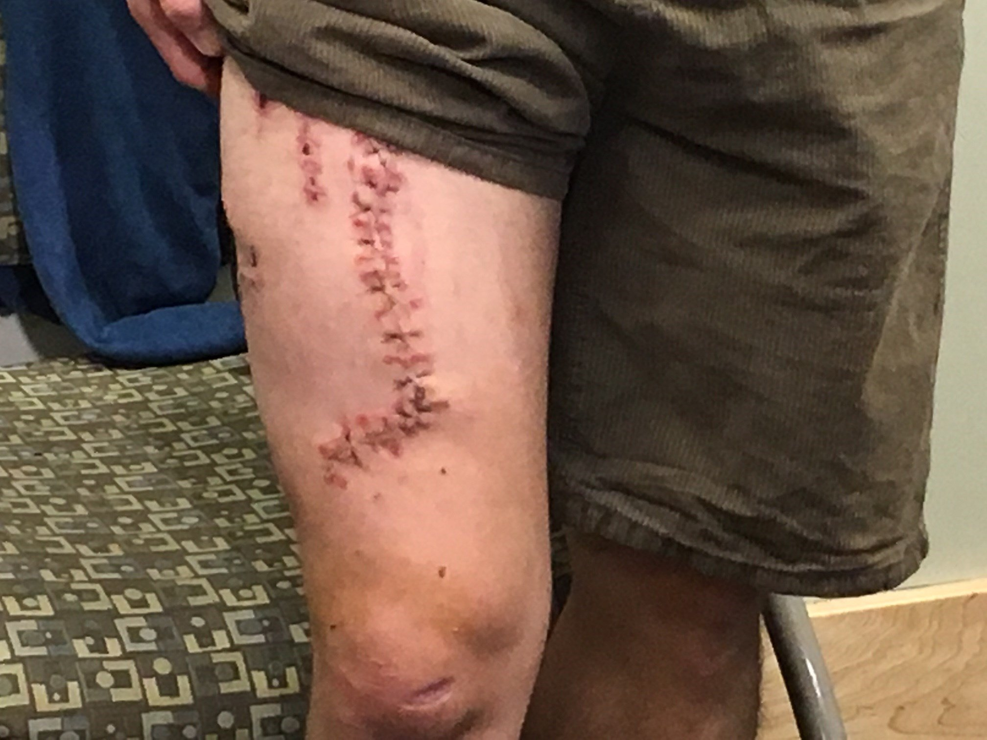 The front of Joe Tanner's leg.