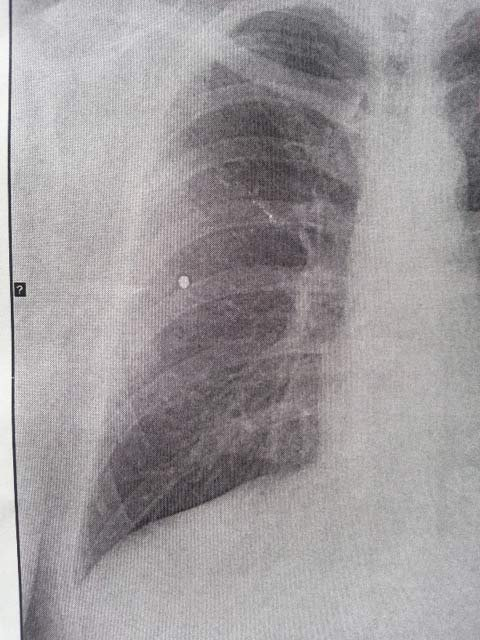 Pellet shooting victim's X-ray