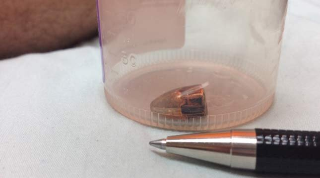 A bullet was removed from the arm of Logan Ostriem, who was shot while watching fireworks in his Vancouver neighborhood.