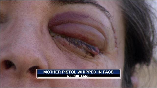 Portland woman pistol whipped by daughter's boyfriend