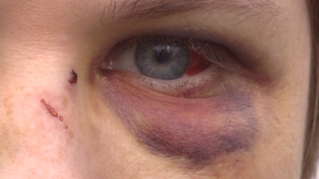 Victim's black eye from the attack.