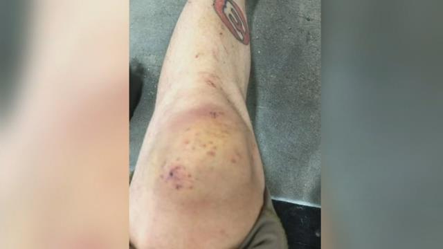 "Oregon couple hurt on lava tour boat in Hawaii: ""I'm just happy I'm alive"""